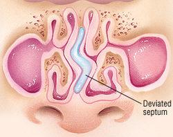 Deviated Nasal Septum & Asthma, Allergies